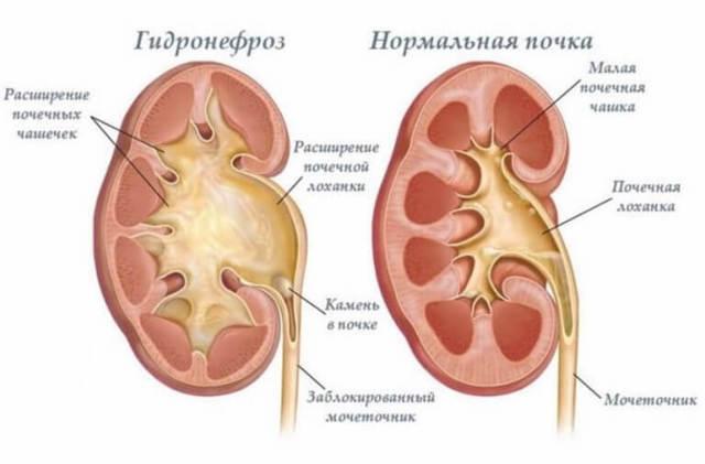 Почечное давление: симптомы и лечение, причины повышения почечного артериального давления