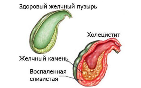 Боль в правом боку – причины боли внизу живота справа, почему болит в правом подреберье
