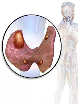 Опухоли паращитовидной железы, аденомы и карциномы, лечение и прогноз