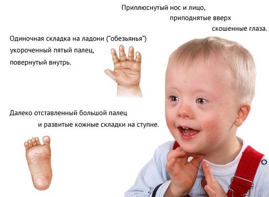 Олигофрения: классификация (степени, формы олигофрении), симптомы, причины, лечение, особенности ухода за детьми с тяжелой умственной отсталостью.