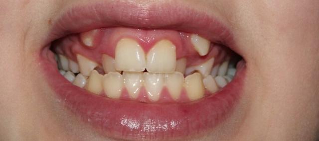 Гипердонтия, полиодонтия, гипердентия: аномалия числа зубов