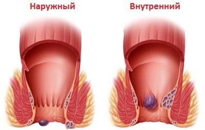 Наружные узлы при геморрое: лечение, как избавиться от наружных узлов при геморрое