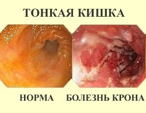 Болезнь Крона: симптомы, лечение, диагностика болезни Крона толстой кишки и тонкого кишечника.
