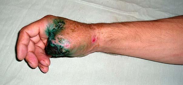 Помощь при травматической ампутации конечности: пальца, кисти, руки, стопы