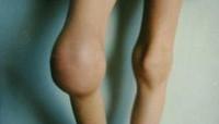 Гемофилия: причины развития, симптомы, осложнения, диагностика, методы лечения гемофилии.