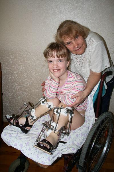 Ахондроплазия: что это такое, генетика и симптомы заболевания, тип наследования