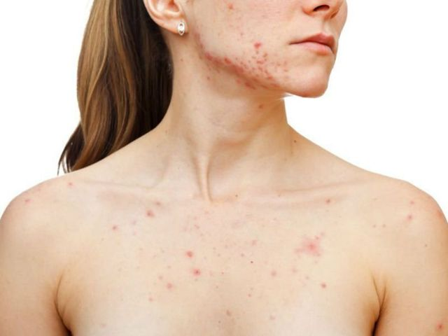 Сыпь на грудине у женщин: причины и лечение сыпи в виде прыщиков и потницы