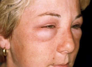 Аллергия на косметику на лице, на глазах: симптомы, лечение, что делать