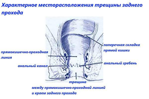 Анальные трещины: симптомы, причины появления, методы лечения трещин в заднем проходе.