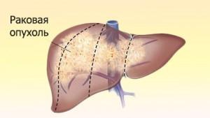 Рак печени: симптомы, лечение, стадии, метастазы при раке печени, сколько живут больные раком печени