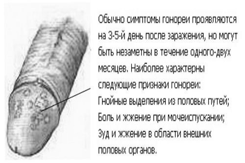 Венерические заболевания у мужчин и женщин: симптомы венерических заболеваний, диагностика и лечение ЗППП.