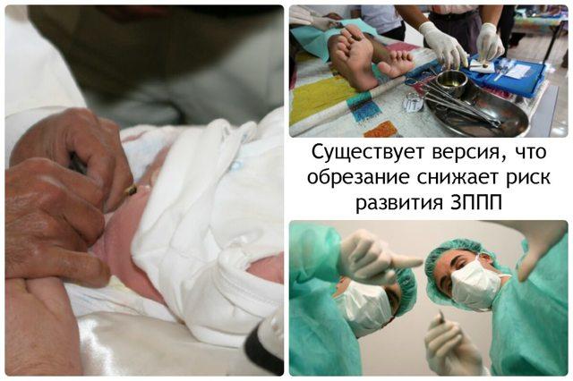 Обрезание крайней плоти: как выглядит, как и зачем делают обрезание у мужчин