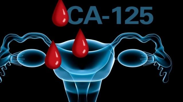 При эндометриозе на сколько может быть повышен анализ СА-125?