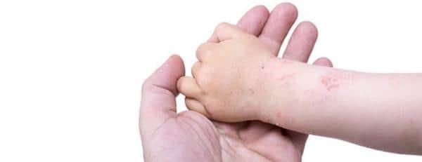 Аллергический дерматит: симптомы и лечение аллергического дерматита у детей и взрослых
