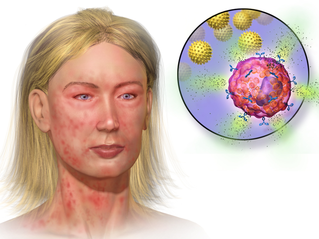 Анафилактический шок: симптомы, причины развития, степени и формы, неотложная помощь при анафилактическом шоке