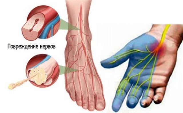 Почему сильно болят ноги и правый бок у пожилого человека?
