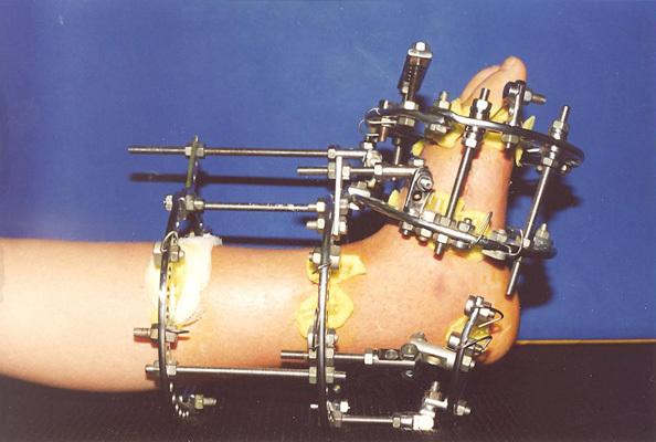 Когда удалять металлоконструкции после перелома берцовой кости?