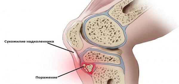 Болезнь Шляттера: симптомы у подростков, лечение болезни Шляттера коленного сустава