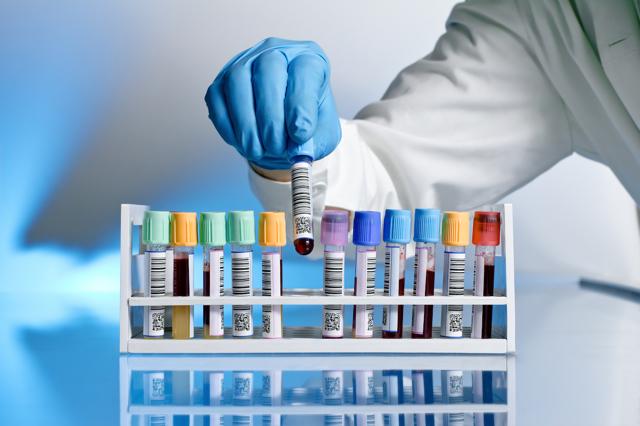 Методы исследования крови: гематологические анализы, биохимия крови, бактериологическое исследование, анализ крови на онкомаркеры и т.д.