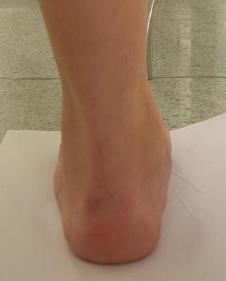 После операции плоско вальгусной деформации перестает расти стопа?
