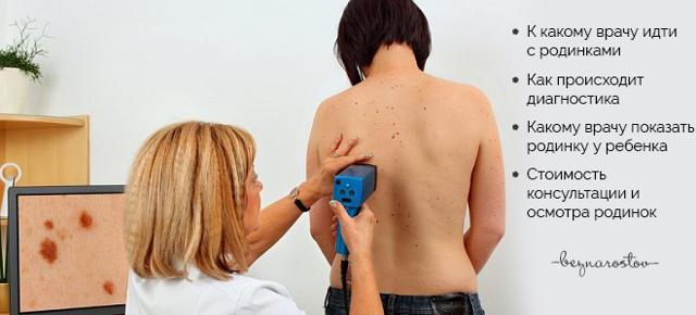 Беспокоит родинка: к какому врачу идти