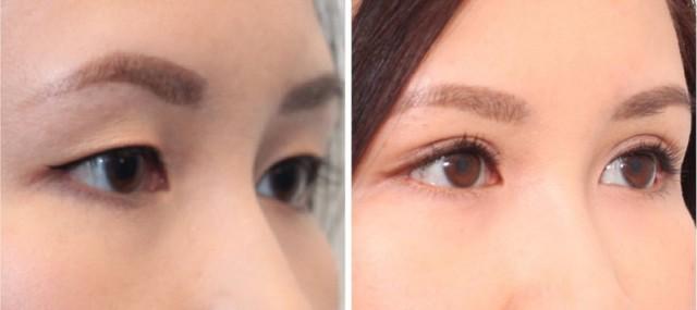 Азиатский разрез глаз: операция, блефаропластика, как изменить разрез глаз