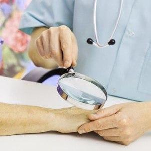 Отрубевидный лишай у человека: лечение отрубевидного разноцветного лишая