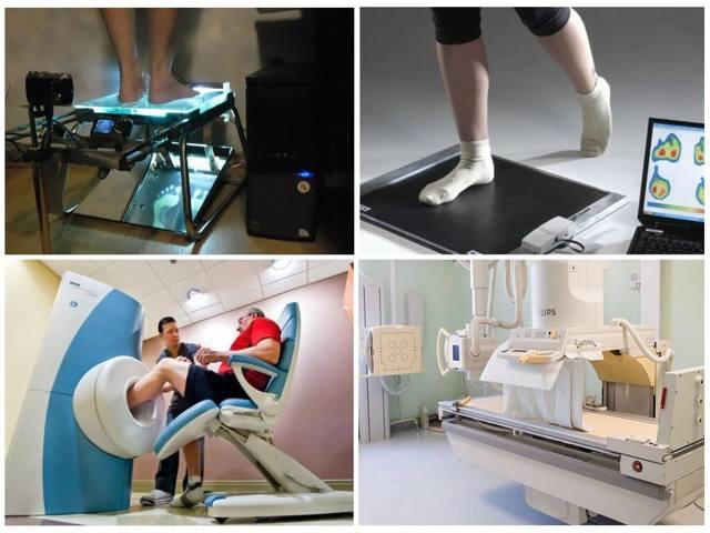 Плоскостопие: степени, лечение плоскостопия и профилактика, плоскостопие и армия