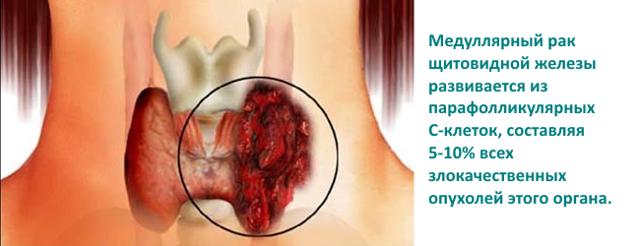 Анализ крови на кальцитонин: что показывает, как подготовиться, норма у женщин, мужчин