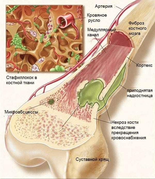 Гнойный артрит коленного, голеностопного, тазобедренного и плечевого сустава: лечение