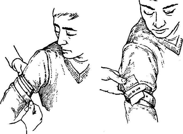 Как накладывать повязку на раны конечностей, пластырная повязка, остановка кровотечения