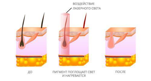 Удаление волос лазером может привести к гормональному дисбалансу?