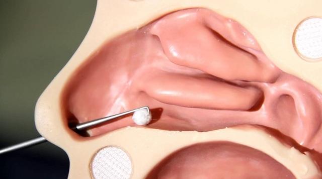 Инородное тело в носу у ребенка: симптомы, первая помощь, удаление инородного тела