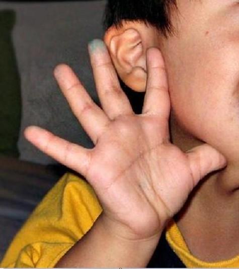 Синдром Дауна: причины, как определить новорожденного с синдромом Дауна, патологии ребенка с синдромом Дауна