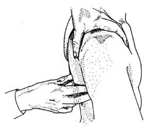 Контрактура плечевого сустава: что это такое, симптомы, лечение, лечебная гимнастика
