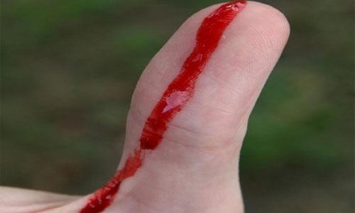 Как обрабатывать рану после падения, чтобы не заразиться столбняком