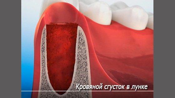 Лечение после удаления зуба: чем полоскать для быстрого заживления